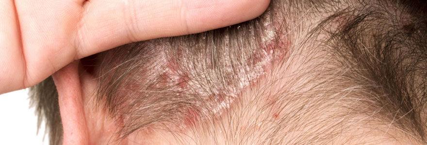 Traitement naturel contre le psoriasis du cuir chevelu